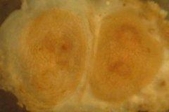 Sea Squirt (Dendrodoa grossularia)